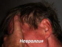 Невралгия: виды, симптомы, лечение