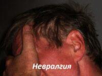 Невралгія: види, симптоми, лікування