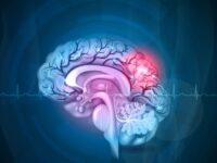 Перші ознаки інсульту. Як надати першу допомогу?