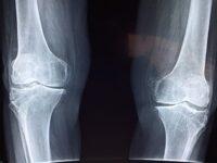 Болезни костей