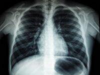 Диагностическая визуализация — рентген, компьютерная томография, магнитно-резонансная томография